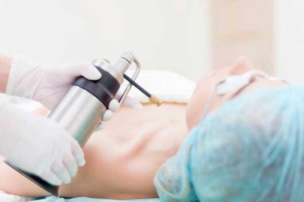 Crioterapia no Tratamento do HPV